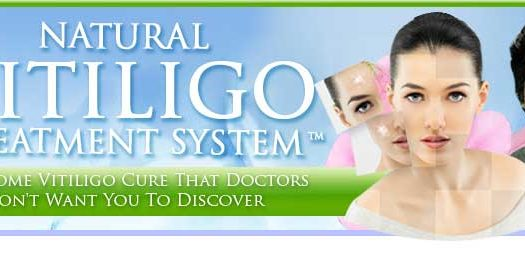 Natural Vitiligo Treatment System Ebook Review