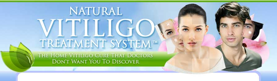 cure vitiligo naturally