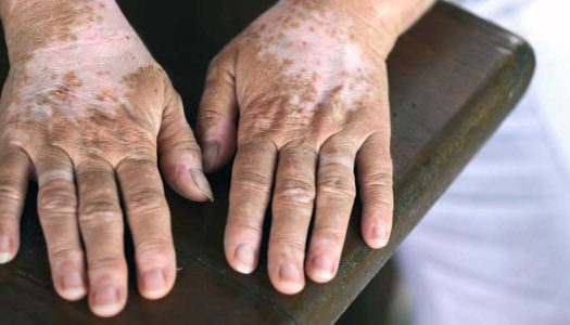 How To Cure Vitiligo in 30 Days Naturally